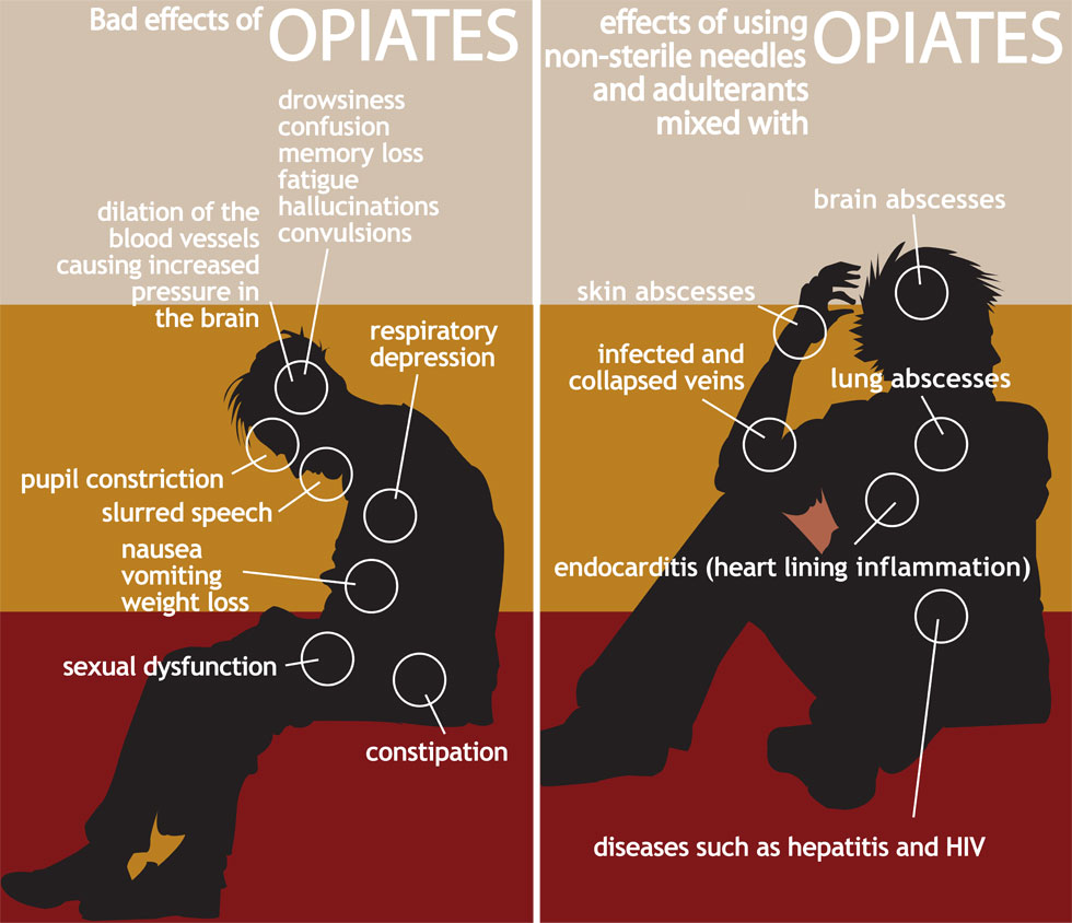 Opium Long Term Effects On The Body Opiates Body Effects Opium Long Term Effects Body